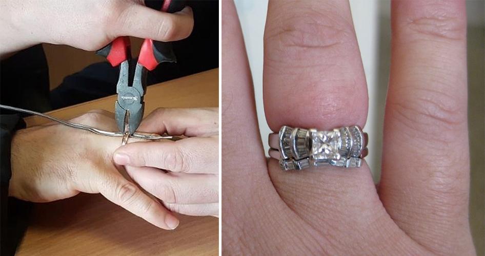 Обручальное кольцо как снять