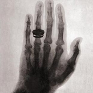 Кольцо Марии Кюри от Вильгельма Рентгена